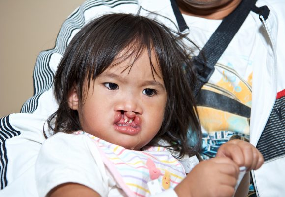 Cleft Lip & Cleft Palate – Manila, Philippines