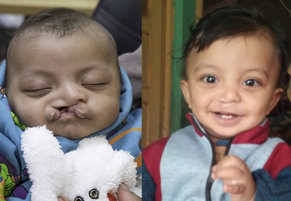Our 7000th Child – One Year Later